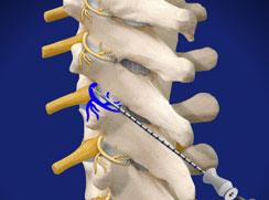 Stellate Lumbar Sympathetic Block